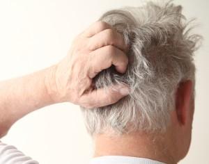 Psoriasi ai capelli, come curarla?