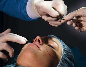 intervento chirurgo plastico