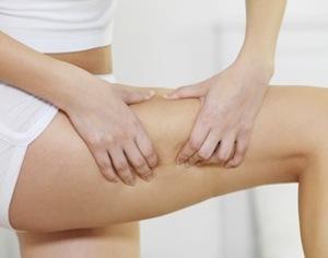 donna che controlla cellulite