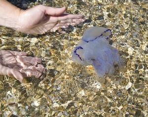 infezione pelle: occhio alle meduse