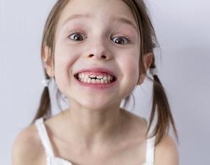 i denti da latte vanno curati