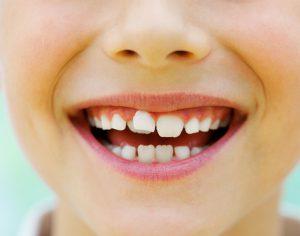 Lo sai che alcune abitudini causano denti storti nei bambini?