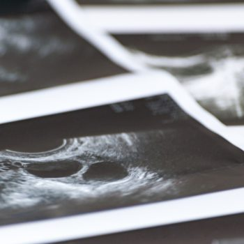staminali embrione sintetico