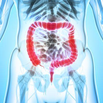 polipi colon retto tumori