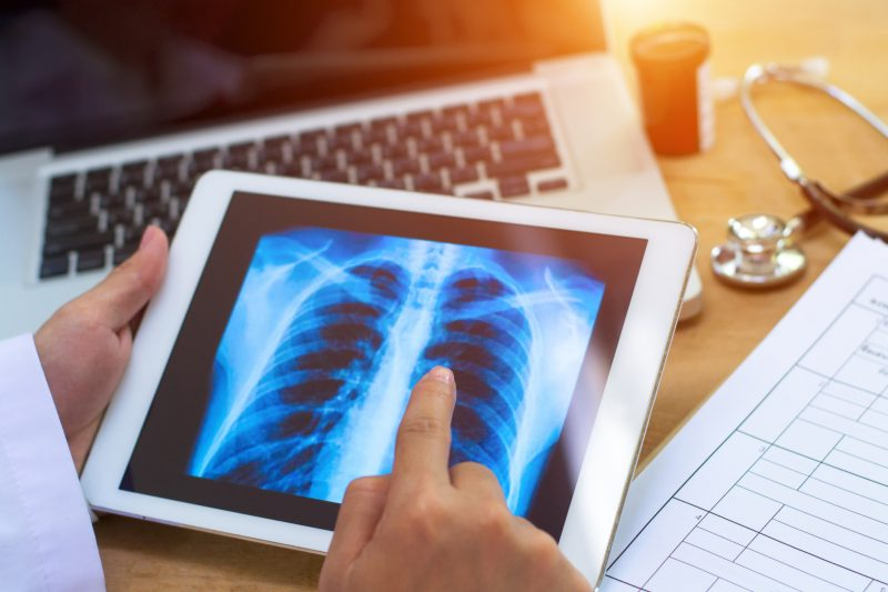 intelligenza artificiale polmoni